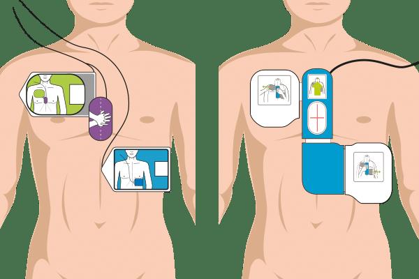 Hjertestarter elektroder